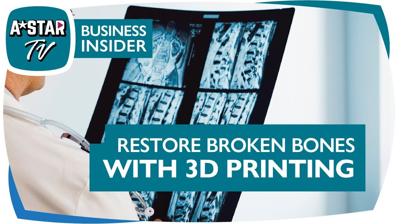 Fixing Broken Bones with 3D Printing - A Project with Osteopore