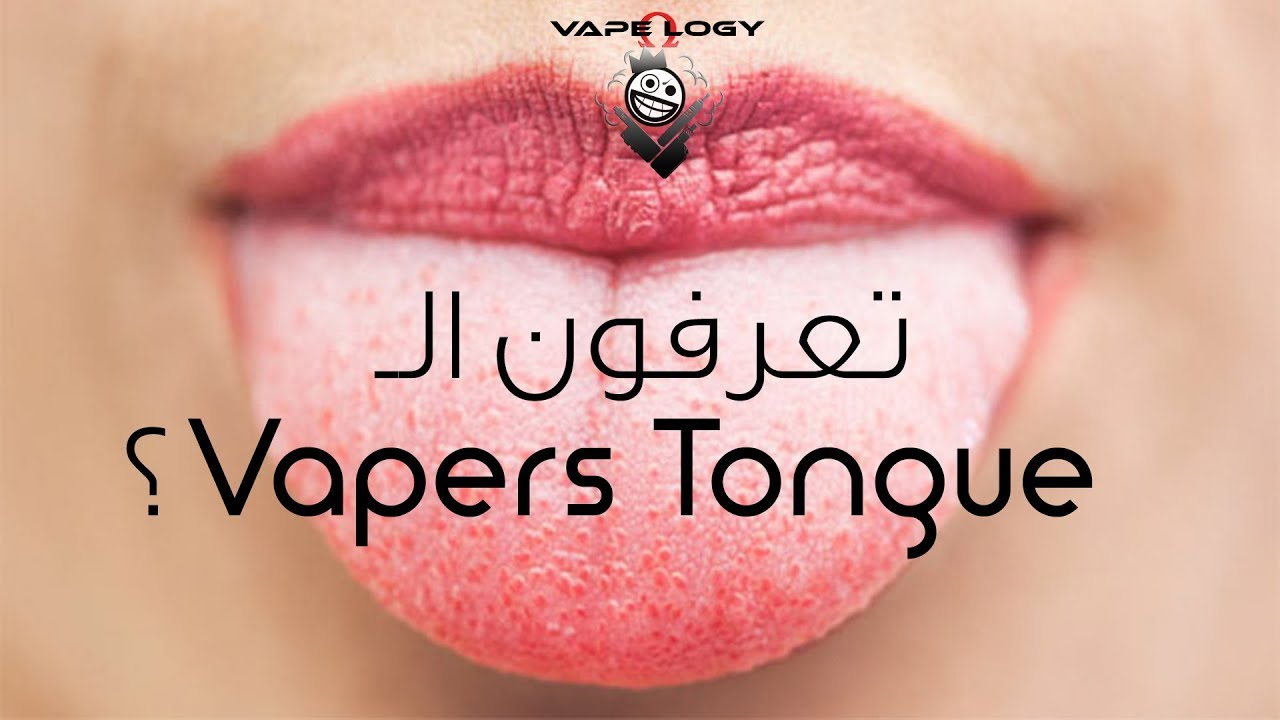 النكهة اختفت ! ماهو الـ Vapers Tongue