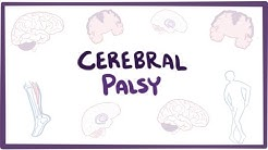 Cerebral palsy (CP) - causes, symptoms, diagnosis, treatment & pathology