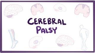 Cerebral palsy (CP) - causes, symptoms, diagnosis, treatment & pathology