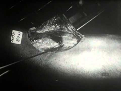 Narcotic Deaths, parts 1 and 2 (Emory University and National Medical Audiovisual Center, 1969)