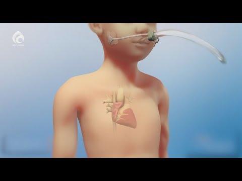 Врождённые пороки сердца у детей / Семейный доктор / Асыл арна