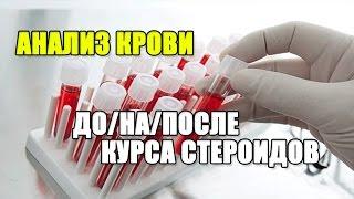АНАЛИЗЫ КРОВИ до/на/после курса СТЕРОИДОВ