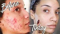 hqdefault - Acne Prone Sensitive Skin Treatment