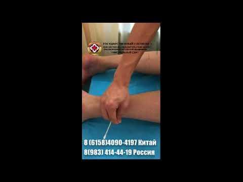 Полиневропатия нижних конечностей лечение в госпитале ТКМ Далянь, Китай