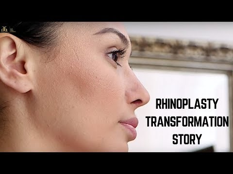 Rhinoplasty Before & After Transformation Story - Dr. Ghavami