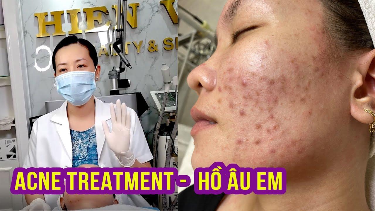 Cyst Acne Treatment | Điều trị mụn hiệu quả số 1 Hiền Vân Spa  | Hồ Thị Âu Em | Part 1 | 521