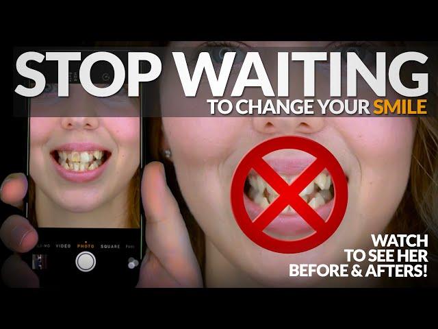 De mauvaises dents vont ruiner votre vie! Arrêtez de visser votre sourire! N'attendez pas! Obtenir de l'aide par Brighter Image Lab