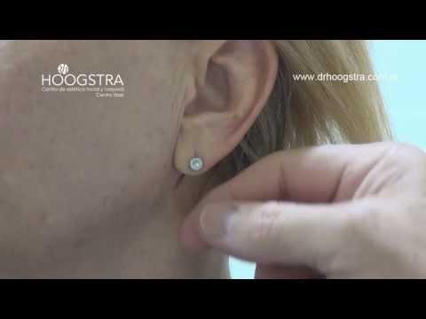 Lóbulo de las orejas, cierre del orificio (14007) from YouTube · Duration:  3 minutes 9 seconds