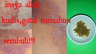 Bahayanya Infeksi Jamur.