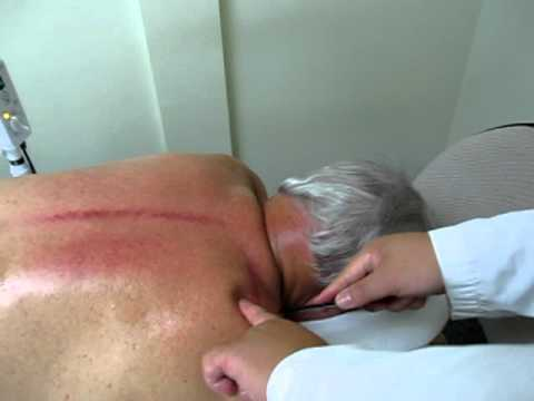 acupuncture and Gua sha treatment 8 years of chronic shoulder pain