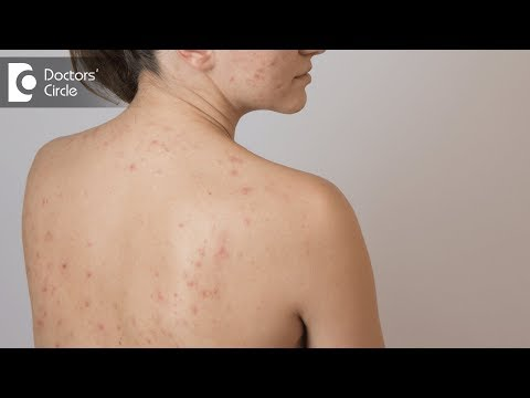 hqdefault - How To Prevent Back Acne After Waxing