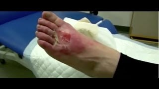 Christmas related injuries (Part 1) - Bizarre ER