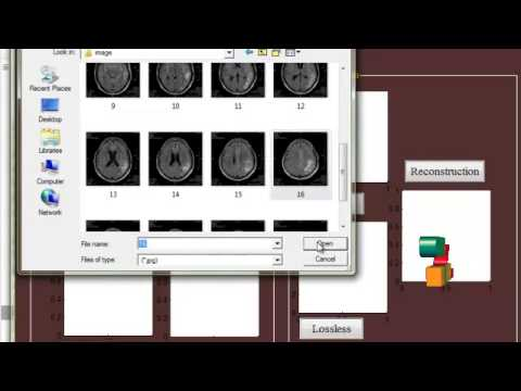 Final Year Projects  | MEDICAL IMAGE COMPRESSION BASED ON REGION OF INTEREST, WITH