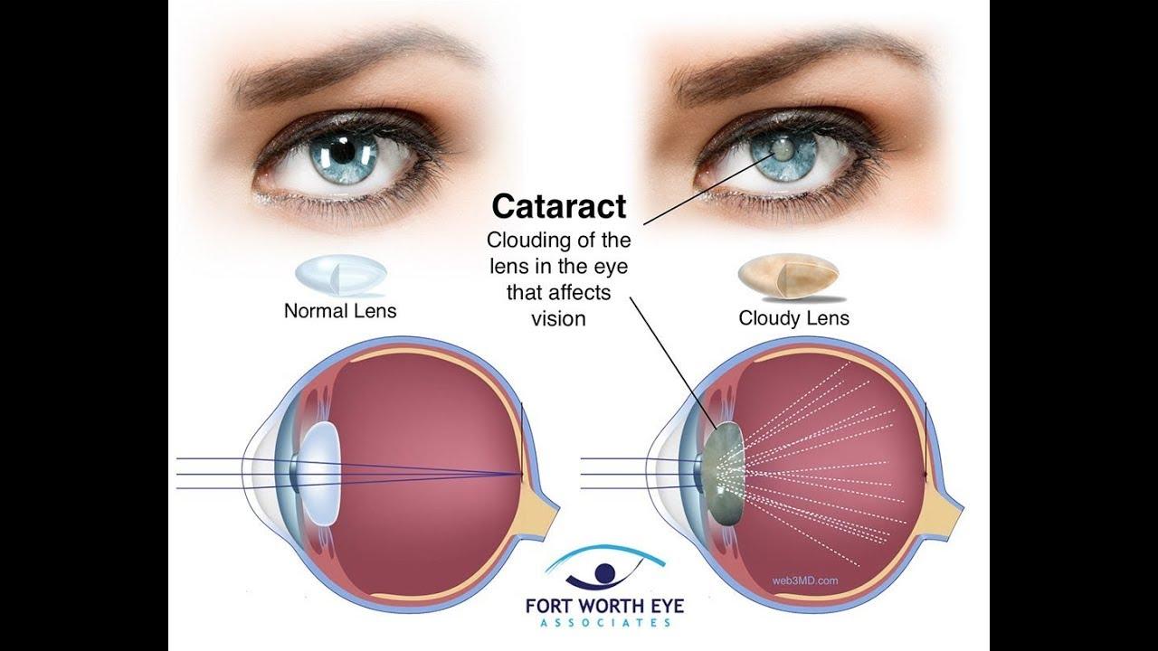 Cataracts-Eye Surgery - YouTube