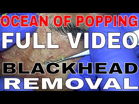 BLACKHEAD EXTRACTION FULL VIDEO