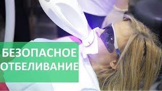 видео Особенности проведения фотоотбеливания зубов