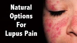 Natural Management of Lupus Pain and Diet for Lupus Tips