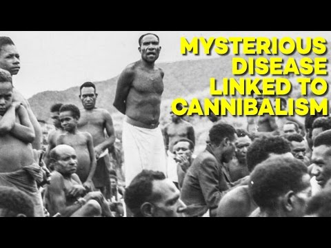 Download Youtube: The MYSTERIOUS Disease that Emerged When People Ate People
