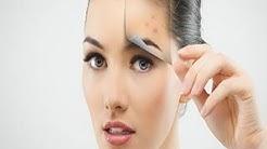 hqdefault - Vitamin E Oil Acne Redness