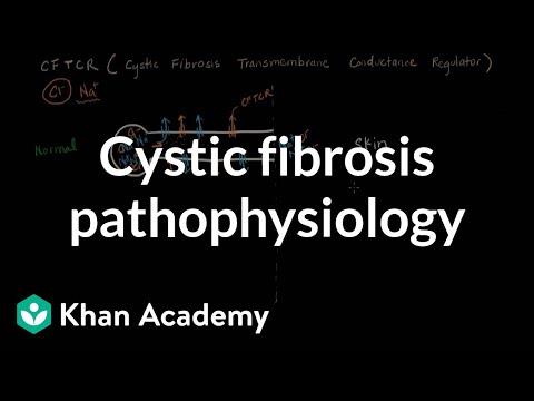 Cystic fibrosis pathophysiology | Respiratory system diseases | NCLEX-RN | Khan Academy