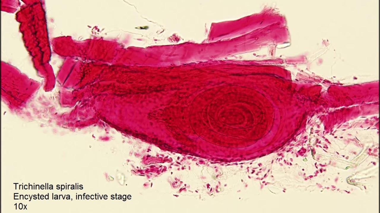 epeféreg tünetei hogyan lehet megszerezni a giardiasist
