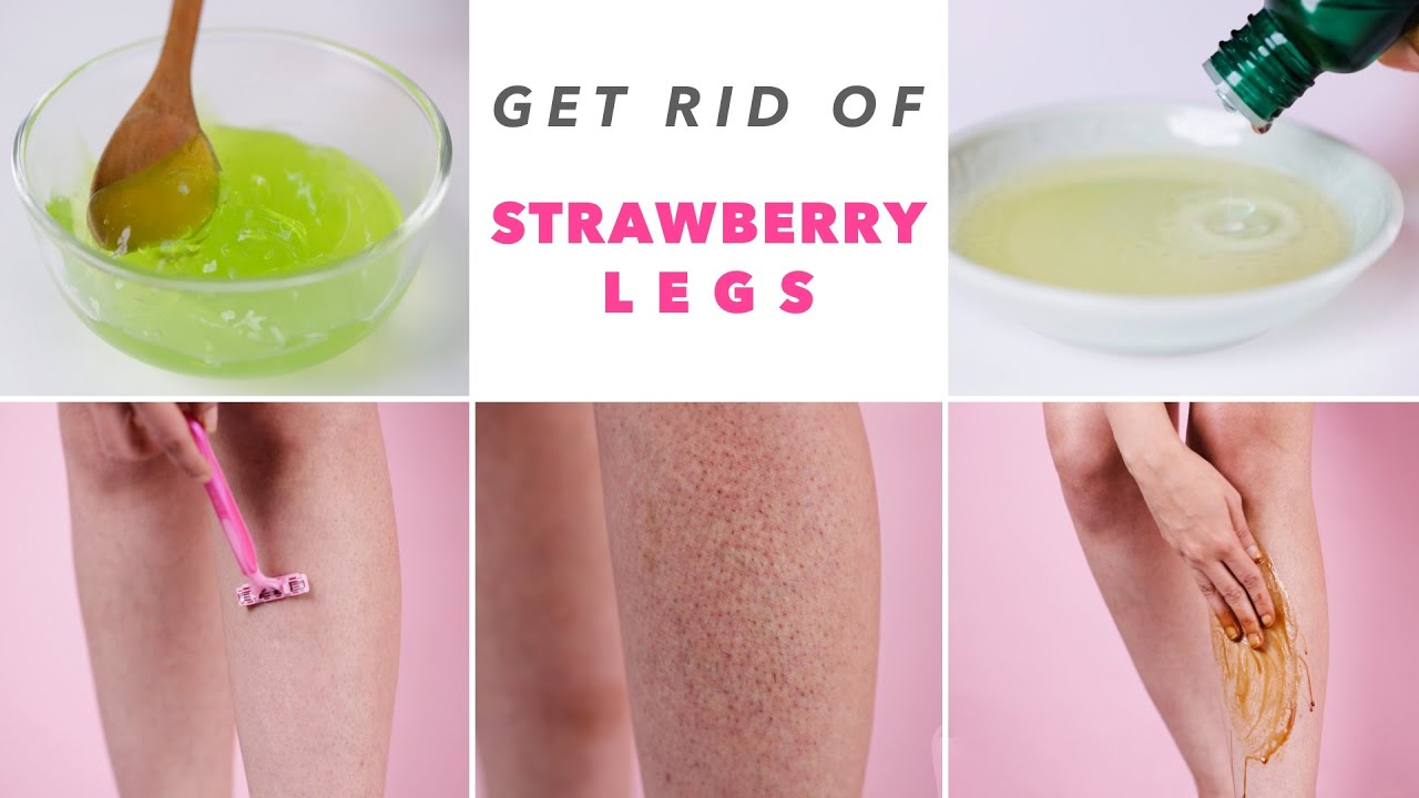 Get Rid Of Strawberry Legs Youtube