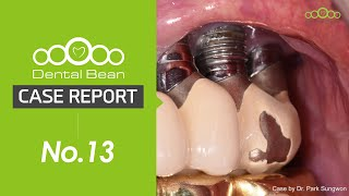 [ENG] 20yr old machined surface Fixture removal, GBR and Temporalization on Upper [#Dentalbean​]