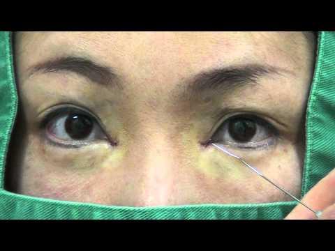高須クリニック  目頭切開の修正手術  蒙古襞形成術  手術直後の腫れている映像  経過、痛み、ダウンタイムについて