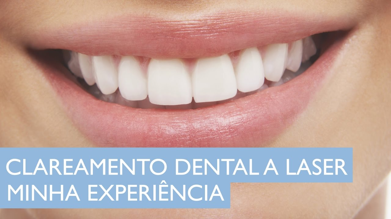 Clareamento Dental A Laser Minha Experi 234 Ncia Youtube