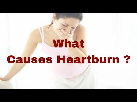 Heartburn Symptoms  - What Causes Heartburn - Heartburn Remedy