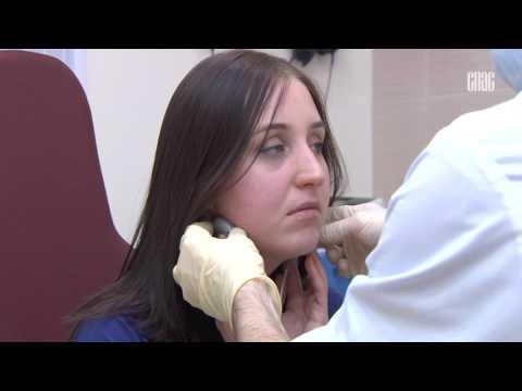 Тонзиллит. Описание, симптомы, причины и лечение