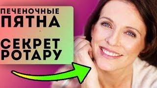 ПЕЧЕНОЧНЫЕ пятна СЕКРЕТ чистой кожи От Софии Ротару Как избавиться от пятен на коже