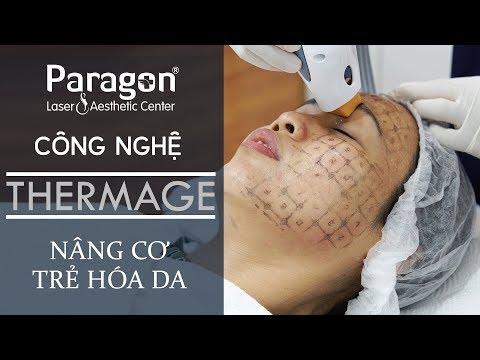Giới thiệu Công Nghệ Trẻ Hóa Da Thermage | Thermage Treatment Review