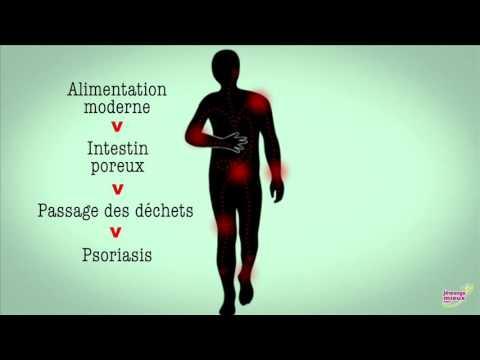 Psoriasis et Alimentation - quel lien ?