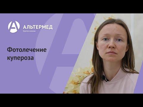 Фотолечение купероза