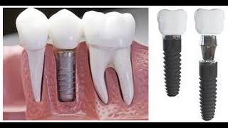 Dental Implants Diagnosis Thumbnail