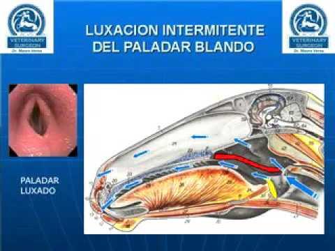 Explicacion de Luxacion de Paladar Blando - YouTube
