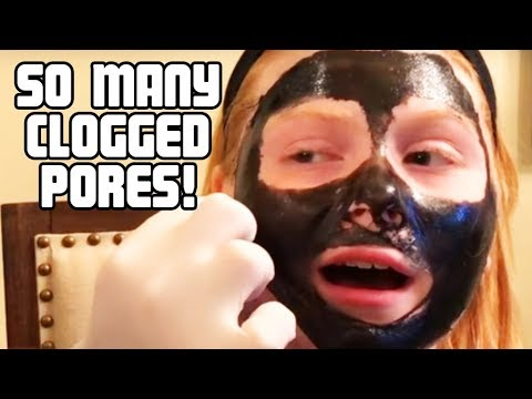 Blackhead Removal Mask with Dr. Gilmore's Daughter