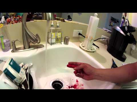 Missing Fingertip Blood Squirt