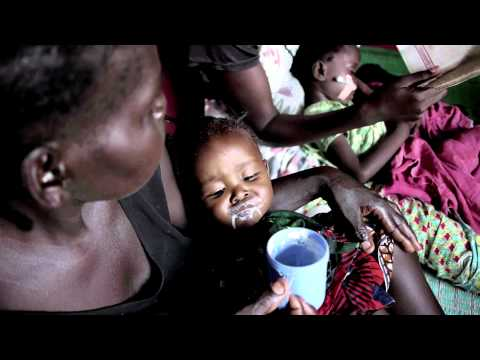 Acute Malnutrition in Central African Republic