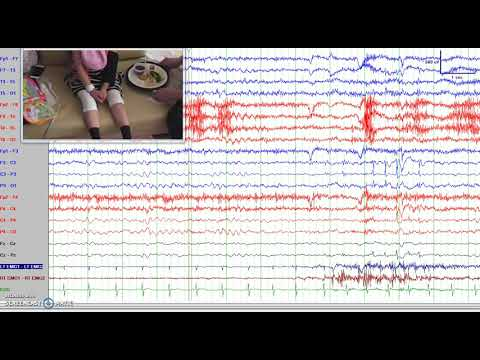 Teaching Video NeuroImages: Needle-like Central Spikes Evoked By Hand Tapping In Rett Syndrome