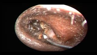 HORRIBLE EAR INFECTION - EAR WAX REMOVAL 2017 HD | Dr. Paul