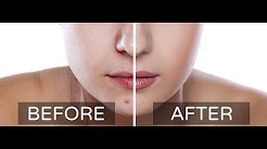 best acne treatment naturally home remedies.