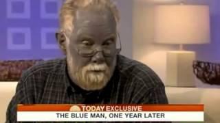 شاهد أغرب رجل في العالم ...الرجل الازرق الحقيقي