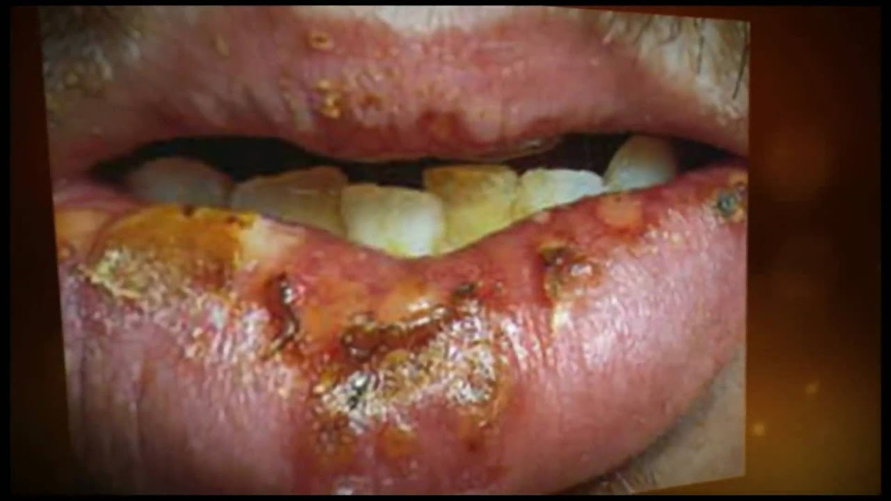 Pictures of sexually transmitted diseases in the mouth