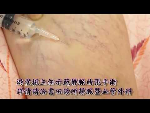 靜脈曲張手術示範--書田靜脈暨血管外科主任游堂振 - YouTube