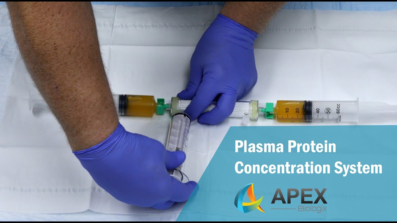 How to Obtain Concentrated Plasma Proteins