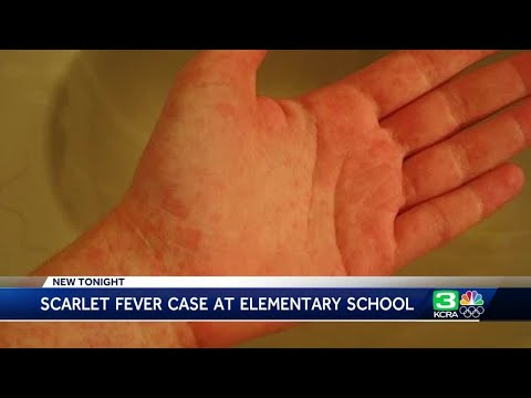 Case of scarlet fever confirmed at Elk Grove elementary school
