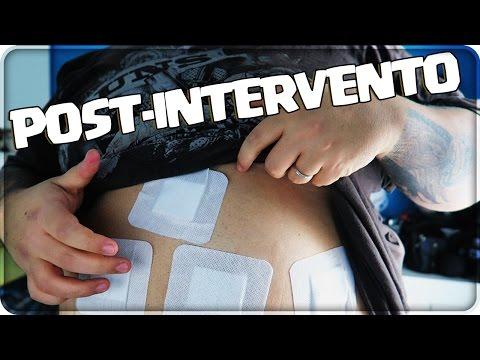 come-procede-???-post-intervento-sleeve-!!!
